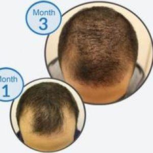 מניעת נשירה הצמחה וחיזוק שורשי השיער -טיפול משולש